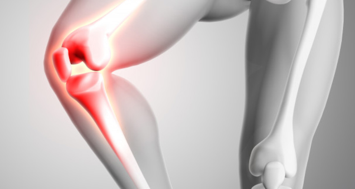 Kinematic Knee Surgery