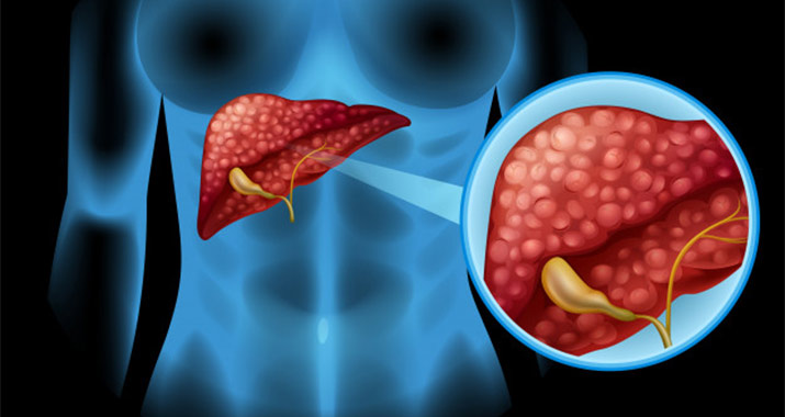 What are the Symptoms of Liver Cancer?
