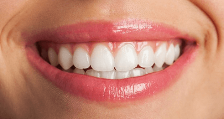 Feeling shy about your yellow stained teeth?
