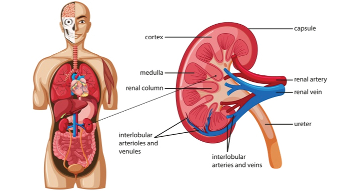 Kidney Transplant in Philippines
