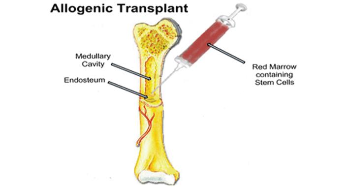 What is Bone Marrow Transplant?