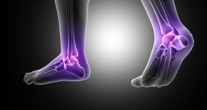What is Ankle (Arthroscopic And Non-arthroscopic) Surgery?