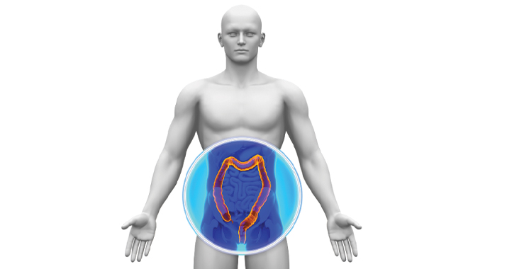What Is Colorectal Cancer? Symptoms, Screening, Staging