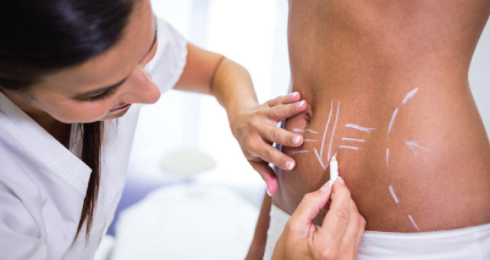 What Is Liposuction, How It Works ?
