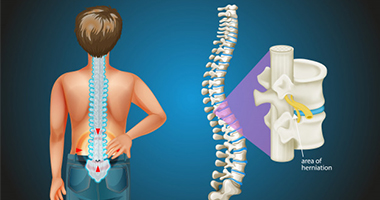 What To Know About Scoliosis Treatment?