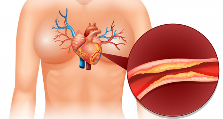 What is Abnormal Myocardial Perfusion?